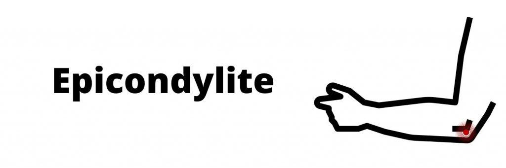 Epicondylite douleurs au coude