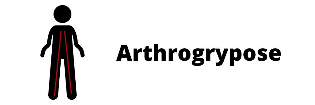 Arthrogrypose : douleurs et ergonomie au travail